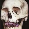 Strong magnets to investigate novel dental implants