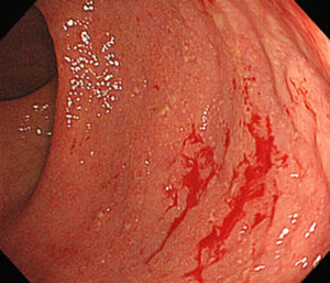 Fig. 1. Diffuse inflammation in the large bowel (the rectum). A small amount of blood is also observed.