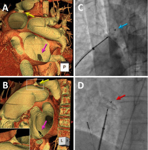 Fig. 1. Evaluation of atrial septal defect (ASD) and patent ductus arteriosus (PDA) in three-dimensional cardiac computed tomography (3D-CT), and fluoroscopic images after transcatheter closure of ASD and PDA. (A and B) Combined ASD (purple arrow) and PDA (yellow arrow) on reconstructed 3D-CT using Ziostation2 (Ziosoft Inc., Tokyo, Japan). (C) Amplatzer duct occluder deployment on fluoroscopic imaging (blue arrow). (D) Amplatzer septal occluder deployment on fluoroscopic imaging (red arrow).