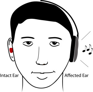 Fig. 1. Schematic illustration of constraint-induced sound therapy. The intact ear is plugged and music is only presented to the affected ear. (This Figure has been adapted from (Okamoto et al. 2014): Drawing courtesy of Lothar Lagemann.).
