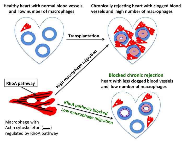 Fighting chronic rejection of transplanted organs atlas of science normal healthy heart has non occluded blood vessels and low number of macrophages after transplantation macrophages migrate into the transplanted heart ccuart Choice Image