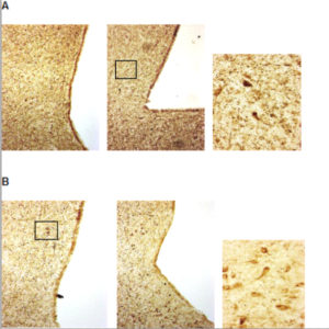 Fig. 1. Microscopic images of sections taken from the hypothalamic region of red deer brains that have been stained (brownish color) to show cells containing neuropeptide Y (NPY) - an appetite stimulating neuropeptide. The left-hand figures show examples from the non-breeding season, the middle figures show breeding season examples and the right-hand figures show magnified images of the boxed areas (in A and B the box has been placed on the section showing highest number of stained cells). A – females, i.e. hinds. B – males, i.e. stags. (It is evident that appetite-stimulatory regulation prevails during the non-breeding season in females and during the breeding season in males.)