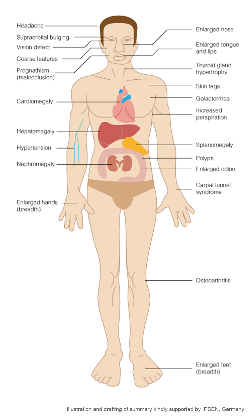 Seeing the signs: Acromegaly | Atlas of Science