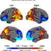 Mapping brain shrinkage in dementia