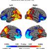 Mapping brain shrinkage in dementia