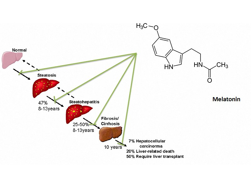Melatonins Role Preventing Steatohepatitis And Improving Liver