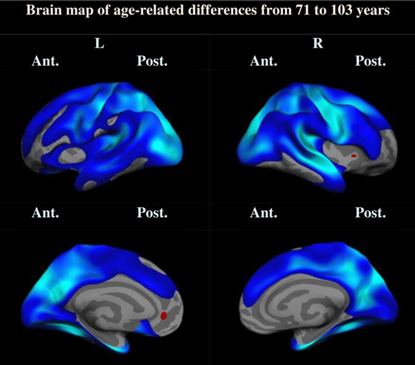 Brain imaging of the oldest old who aged successfully
