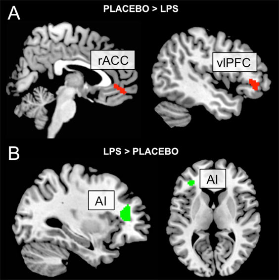 Inflammation alters brain function and pain processing centrally