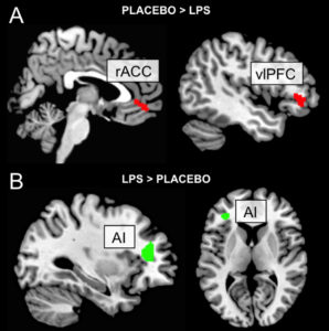A) Sagittal representation of lower activity in the rostral anterior cingulate cortex (rACC) and the ventrolateral prefrontal cortex (vlPFC), key areas for pain regulation, in LPS-treated subjects compared to placebo. B) Sagittal and axial representation of left (contralateral to pain stimulus) anterior insula, where LPS-treated subjects had higher activity compared to placebo. RED indicates decreased activity, GREEN increased activity.
