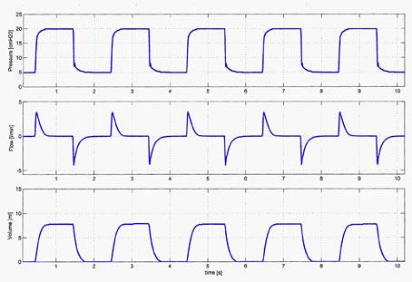 Respiratory function monitoring in ventilated newborns