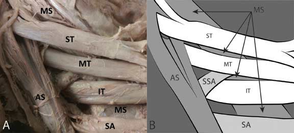 Newly discovered brachial plexus variation may explain cases of undiagnosed Thoracic Outlet Syndrome