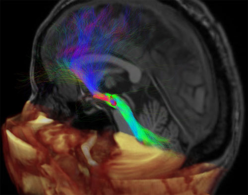Mapping red nucleus connections in humans by using dMRI and tractography