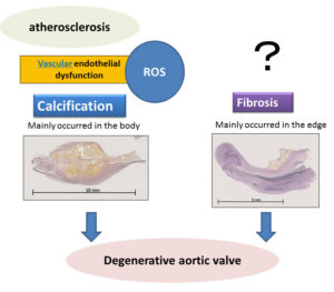 Two main pathologic pathways of degenerative aortic stenosis.