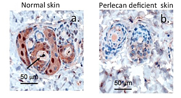 Immunolocalisation of TGF-beta 1 in C57BL/6 wild type mouse skin