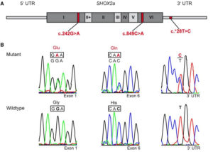 Identified SHOX2 variants in patients with atrial fibrillation.