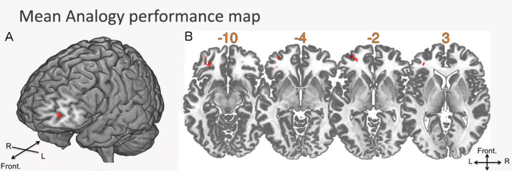 The region associated with a specific deficit in analogical reasoning is located in the left anterior frontal cortex.