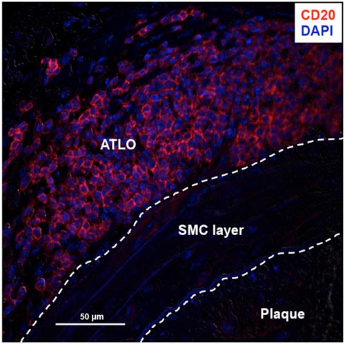 Aorta tertiary lymphoid organs: Powerhouses of B cell immunity in atherosclerosis