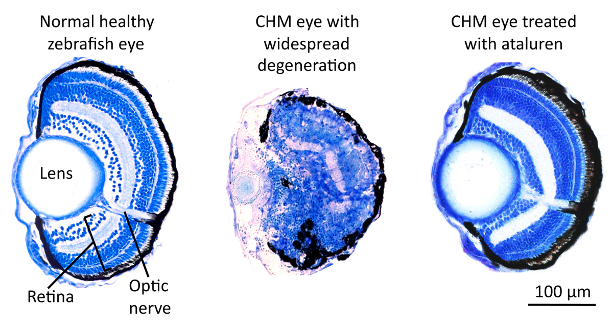 Fig 1 Cross Sections Through A 6 Day Old Normal Healthy Zebrafish Eye CHM And Treated With Ataluren