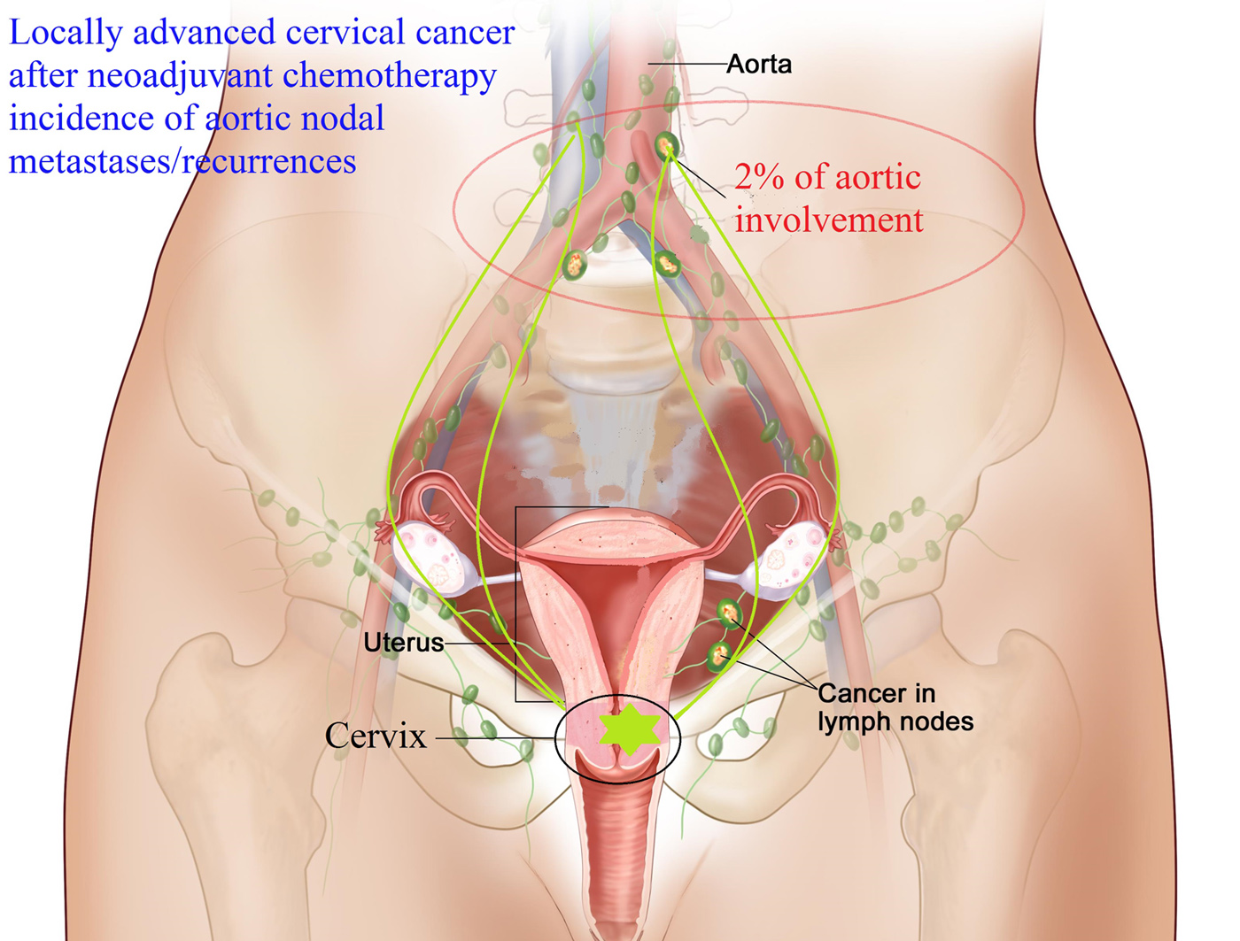 Risk Of Aortic Nodal Metastases In Cancer Of The Uterine Cervix