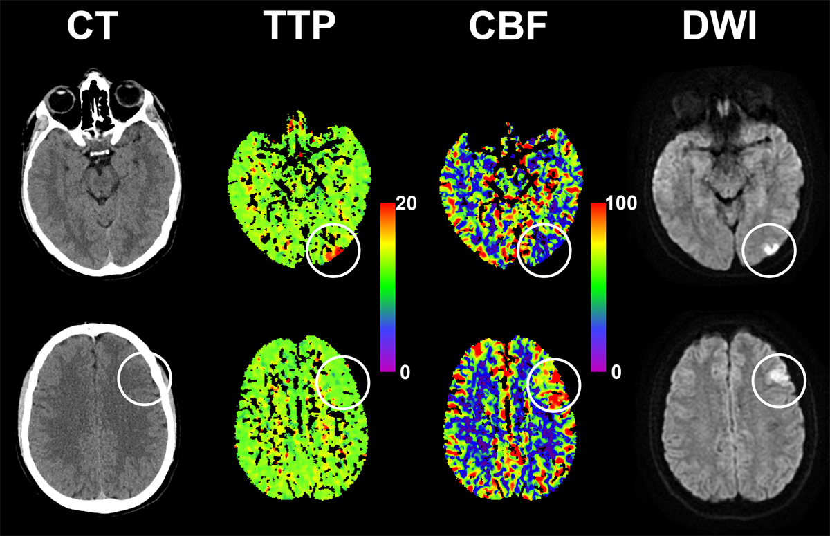 Ischemic cerebral stroke is a very common disease 2