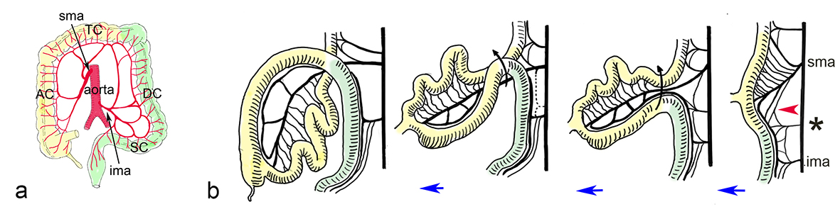 Anomalous Arterial Supply To The Colon Refuses To Obey The Embryonic