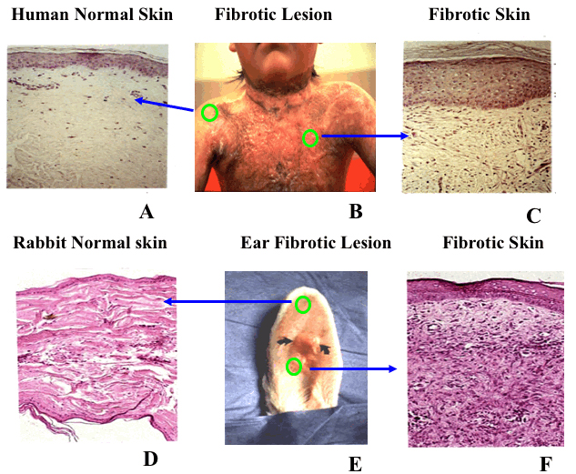 Histology of normal and fibrotic human skin in comparison to normal and fibrotic skin in the rabbit ear model.