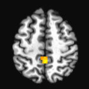 The highlighted region shows the area where differences in neural activation between the statin and placebo groups were measured with functional magnetic resonance imaging (fMRI) during the Figural Memory Task.