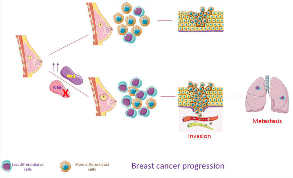 Schematic illustration for the role of NMI during cancer progression: Upon the loss of NMI BC had higher proportion of less differentiated cells