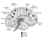 Brain Networks of Attention
