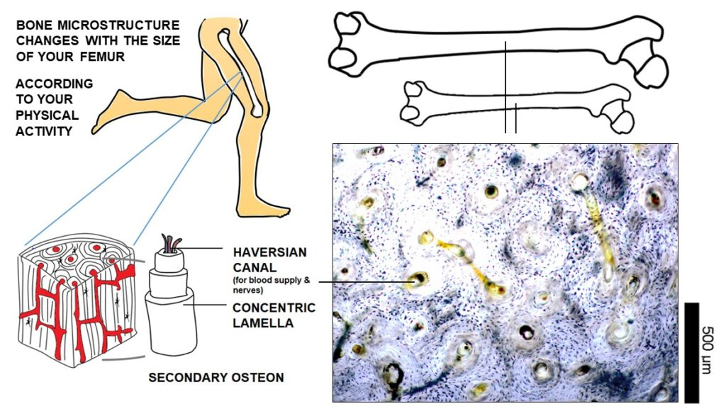 At the microstructural level, adult cortical bone is composed of secondary osteons which contain a central Haversian canal surrounded by lamellar layers. It also houses osteocyte cells that occupy lacunae cavities (tiny black dots in the bone histology image on the right) and maintain bone when alive