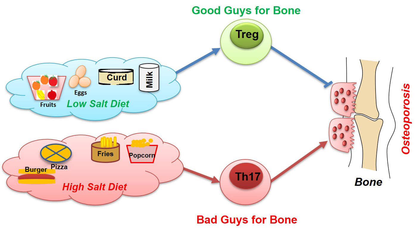 High dietary salt intake induces bone loss by enhancing bone lethal Th17 cells and suppressing bone protecting Treg cells.