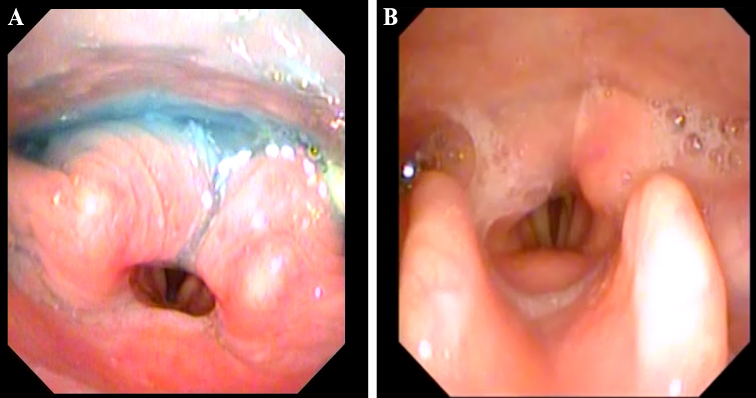 Patient following heart surgery with significant edema and aspiration