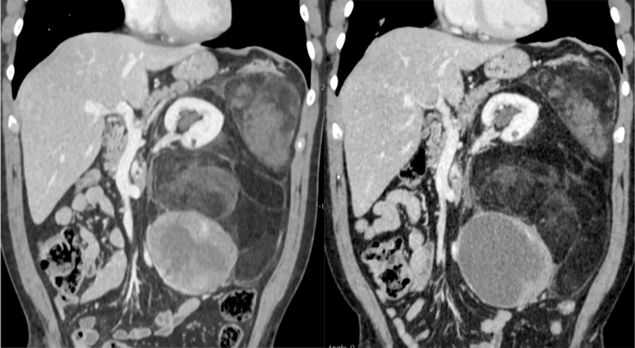 Chemotherapy and Radiotherapy in Abdominal Sarcoma