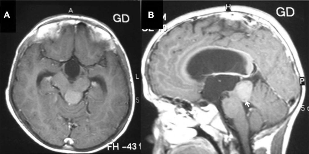 Transventricular Transvelar Approach to Trochlear Nerve Schwannoma