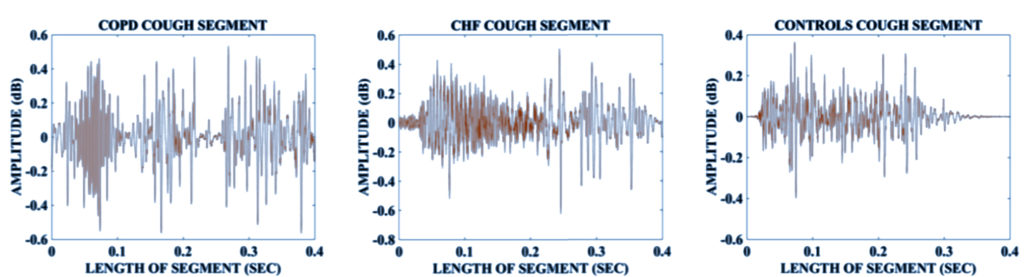 Zero Crossing Rate of COPD, CHF and Controls Cough Segments