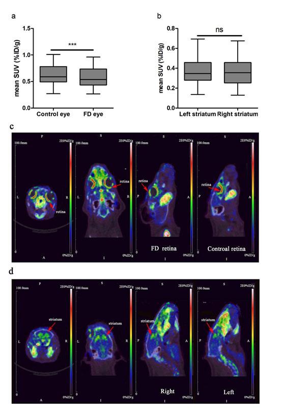 VMAT2: a novel biomarker for myopia