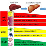 Immunological changes associated with Hepatocellular Carcinoma development