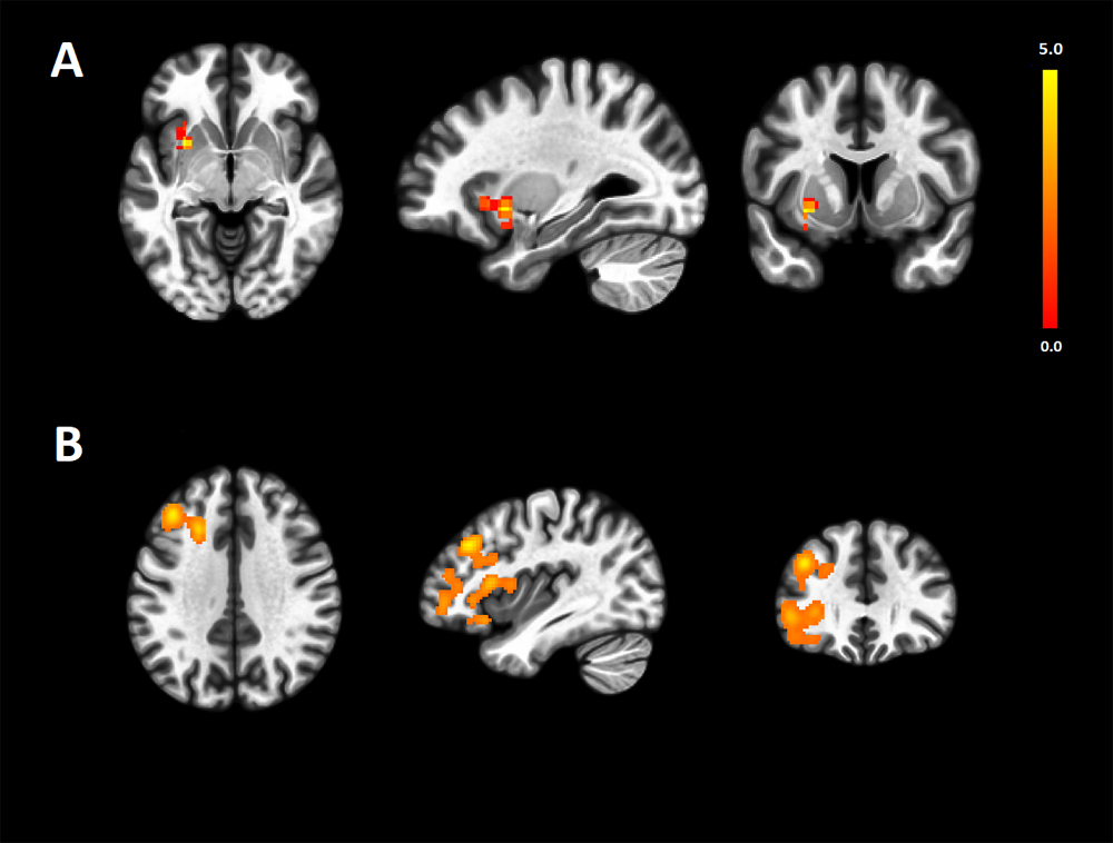 Brain networks in major depressive disorder