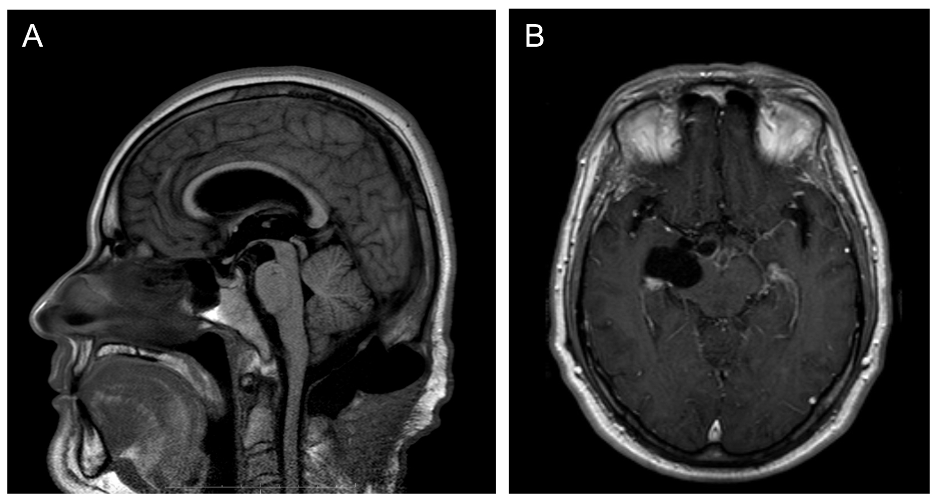 The development of hydrocephalus with reaccumulation of fluid in the surgical site