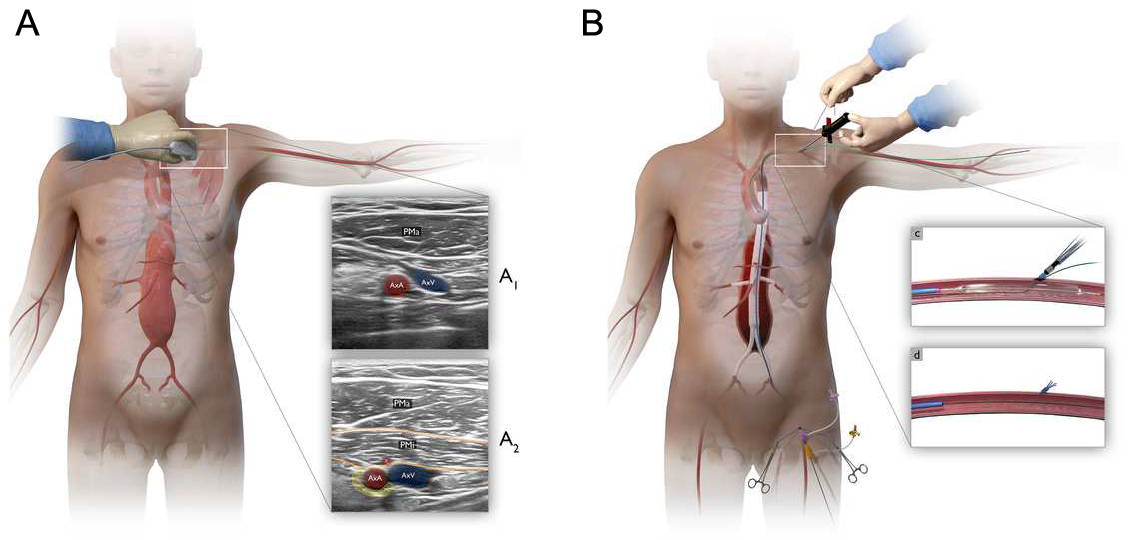 Percutaneous axillary artery access for fenestrated and branched thoracoabdominal endovascular repair