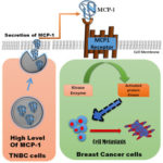Model of MCP-1 action in breast cancer cells
