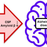 Repetitive DNA in the ABCA7 gene influences Alzheimer's disease