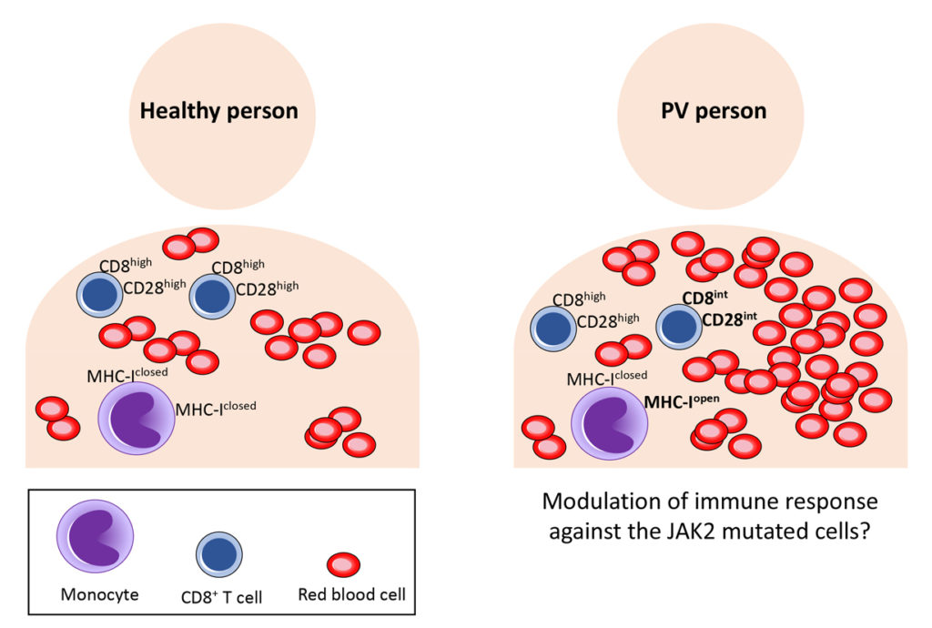 A new immune signature in people with Polycythemia vera: modulator of disease progress
