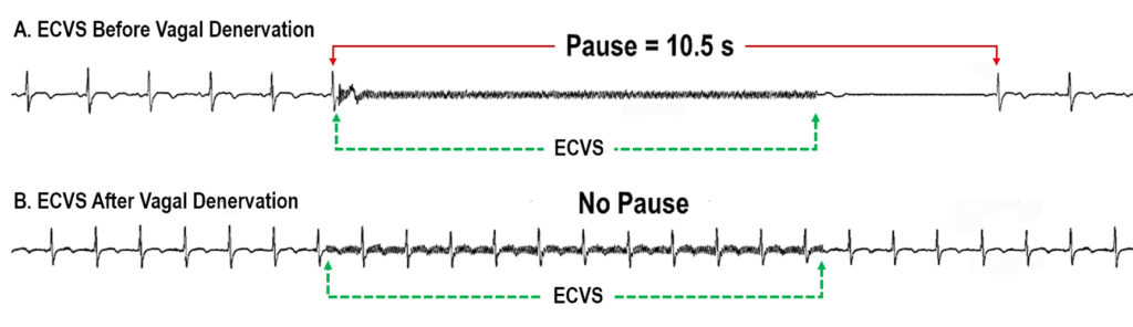 Vagal Stimulation for Treating Syncope by Cardioneuroablation without Pacemaker Implantation