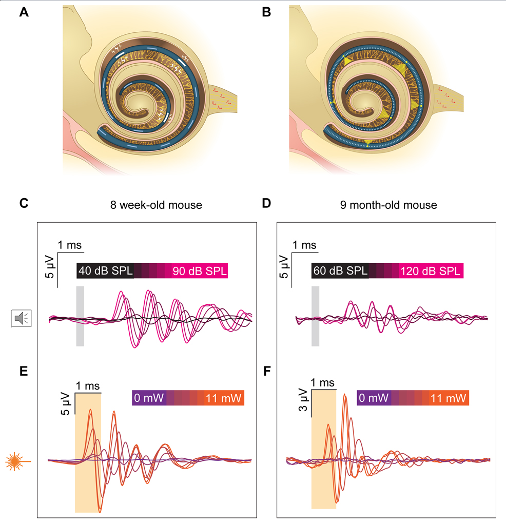 Artificial stimulation of the cochlea.