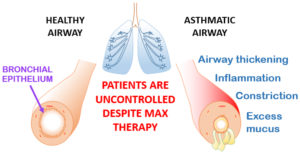 Schematic representing the airways in health and asthma