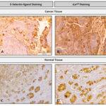 How to stain E-selectin ligands in tumor tissue