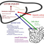 Gut-liver axis and putative pathogenesis of liver injury in celiac disease. AoS
