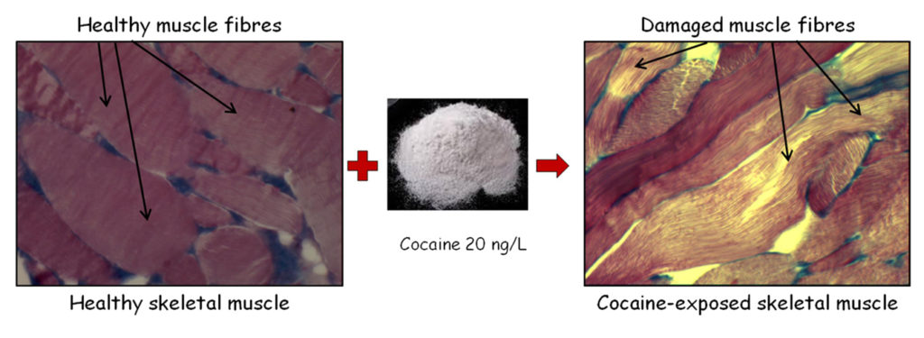Cocaine damages the muscle of the eels. Atlas of Science