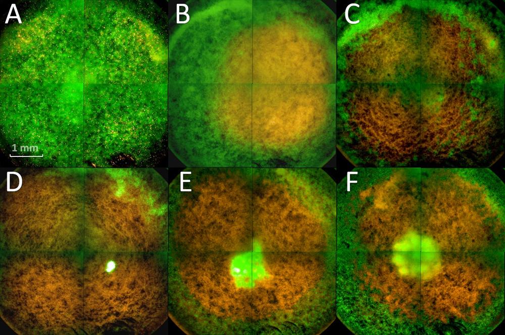Fluorescence microscopy of plasma-treated biofilms. Atlas of Science